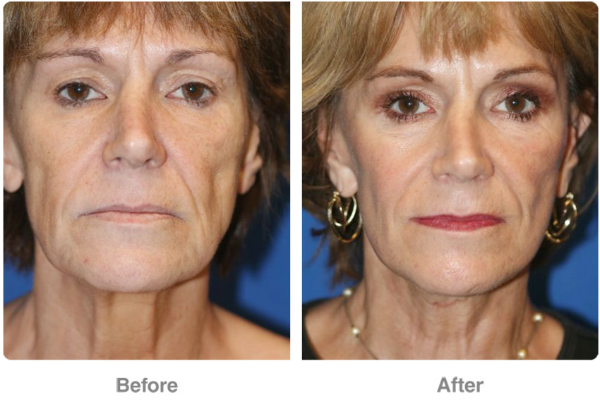 Foreheadlift Revitalize Your Facial Appearance
